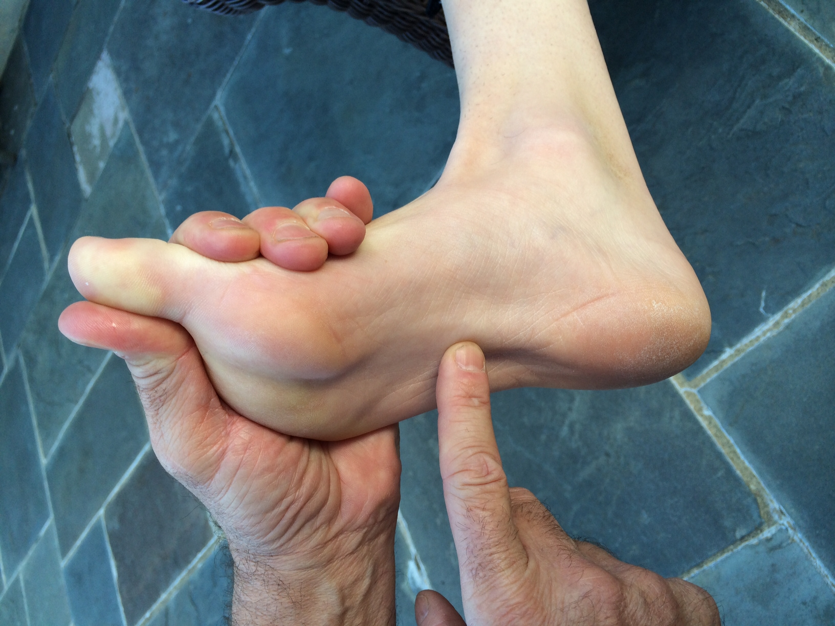 """Heel Pain """"The Real Show Stopper"""" 
